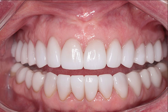 Cosmetic Crowns - After