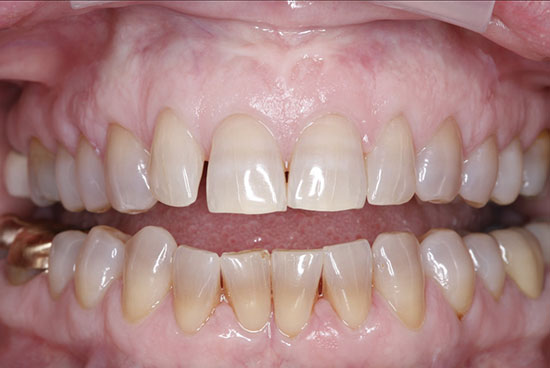 Cosmetic Crowns - Before