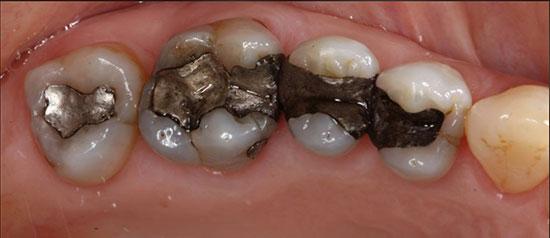 Dental Crowns - Before