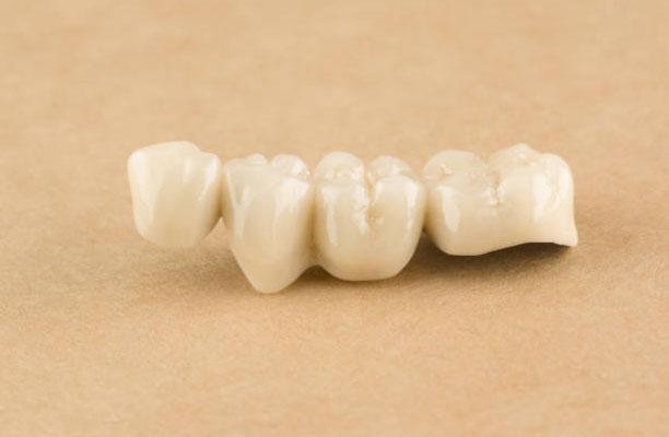 Dental Crowns and Bridges in San Diego, CA - Clairemont Mesa Dental Center