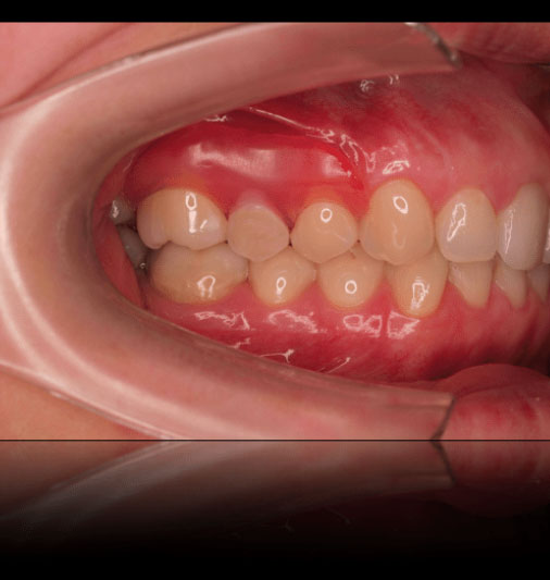 Cosmetic Partial Dentures - After