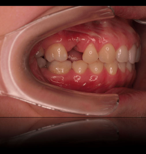 Cosmetic Partial Dentures - Before