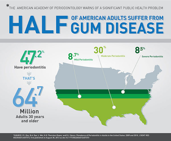 Gum Disease Statistics and Available Treatment in San Diego, CA - Clairemont Mesa Dental Center