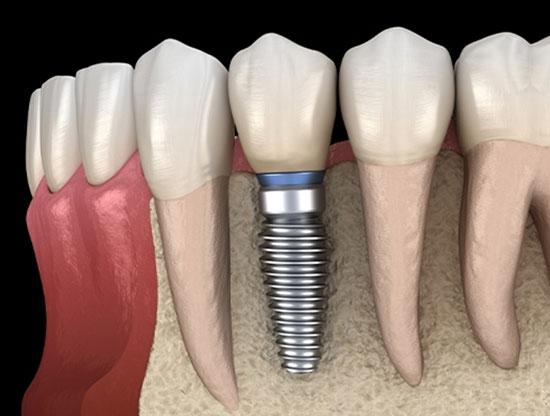 Dental Implants in San Diego, CA - Clairemont Mesa Dental Center