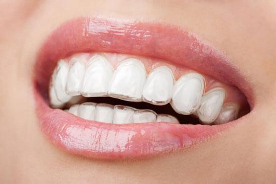 Invisalign in San Diego, CA - Clairemont Mesa Dental Center