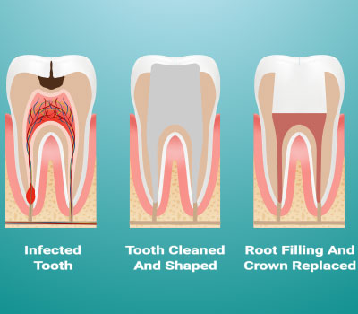 Root Canal Therapy in San Diego, CA - Clairemont Mesa Dental Center