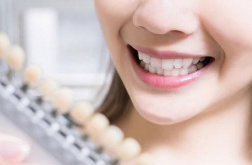 Teeth Whitening in San Diego, CA - Clairemont Mesa Dental Center